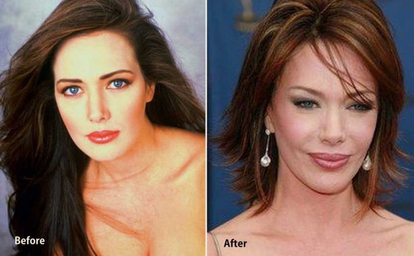 Hunter Tylo Plastic Surgery – Everything Gone Wrong