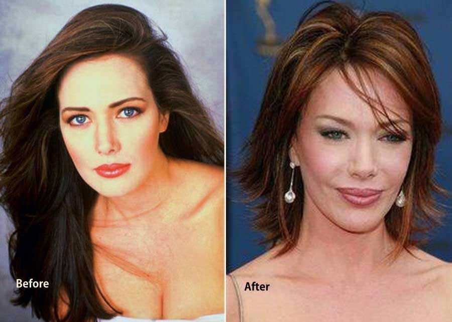 Hunter Tylo Plastic Surgery Everything Gone Wrong